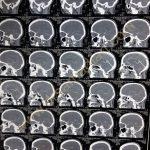 عکس از آنوریسم مغزی