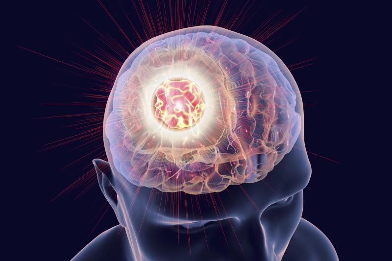 متاستاز مغز