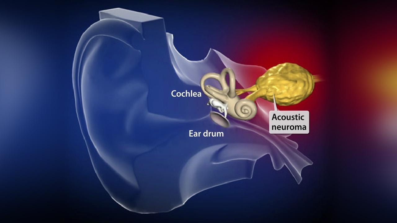 تومور عصب شنوايی