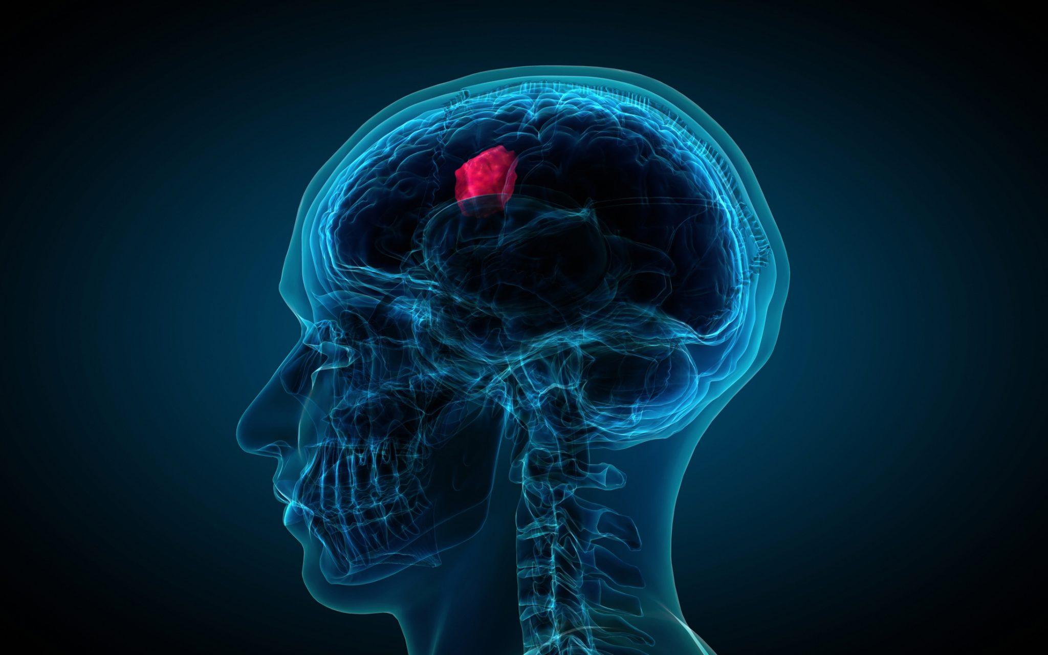 تومورهای مغزی خوش خیم و بدخیم