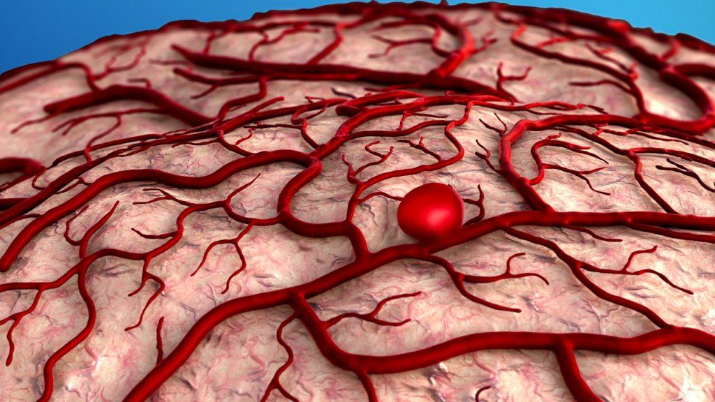 علائم و درمان آنوریسم مغزی