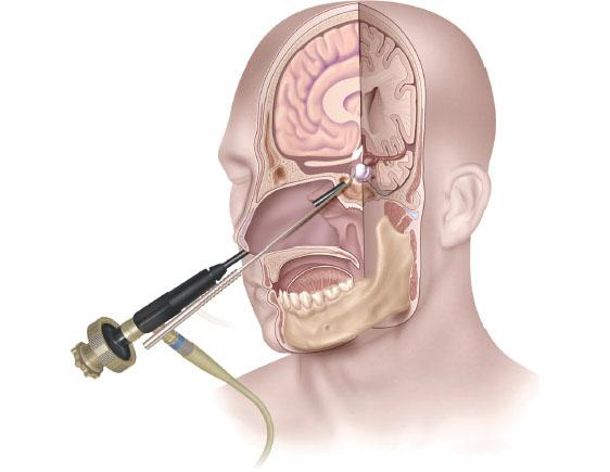 مراقبت های بعد از جراحی آندوسکوپی مغز