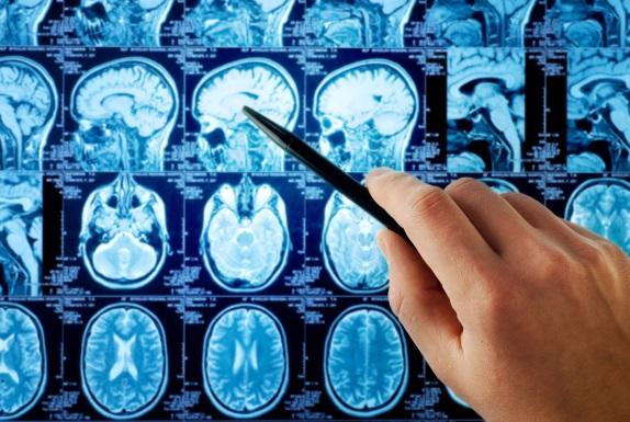 راه های تشخیص تومور مغزی