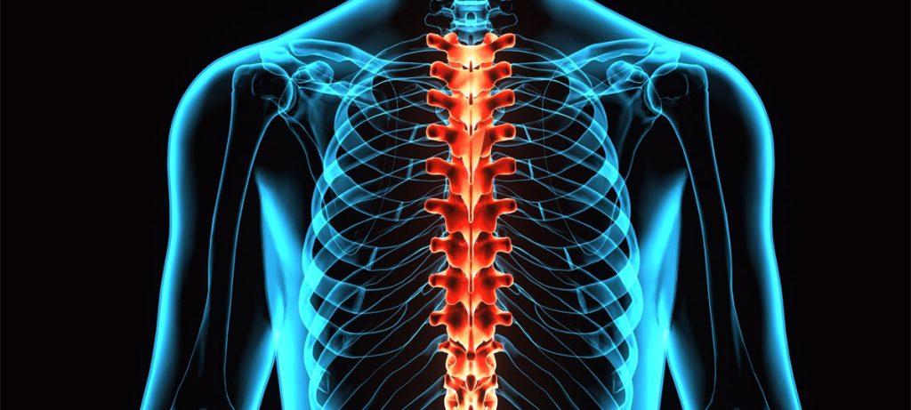 درمان جراحی سندروم طناب مرکزی