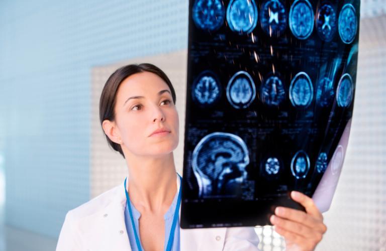 تشخیص و درمان تومور سی پی انگل