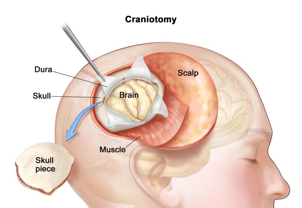 مدت زمان بهبود بعد از عمل کرانیوتومی چقدر است
