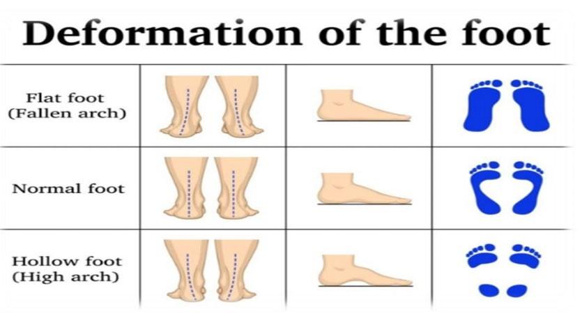 چرا کفش تابستانی موجب کمردرد می شود