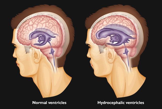 درمان هیدروسفالی