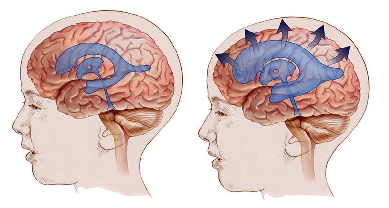 سودوتومور سربری یا تومور مغزی کاذب