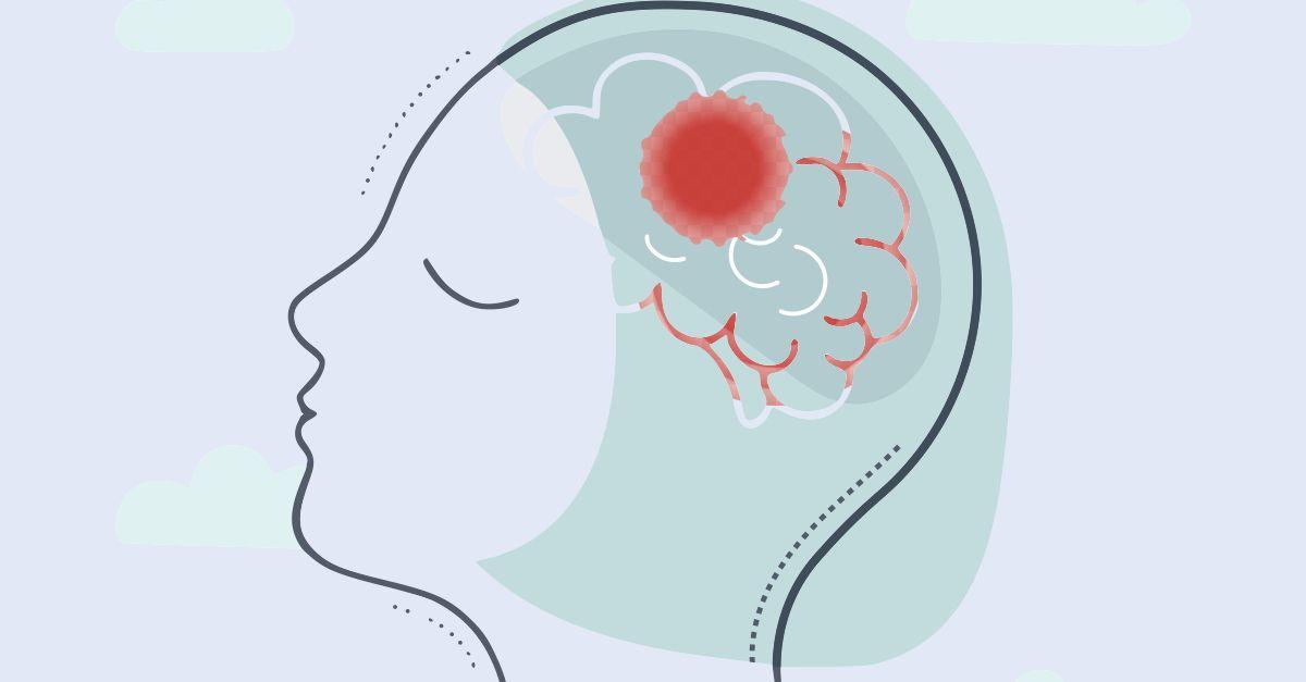 انواع تومور مغزی بدخیم