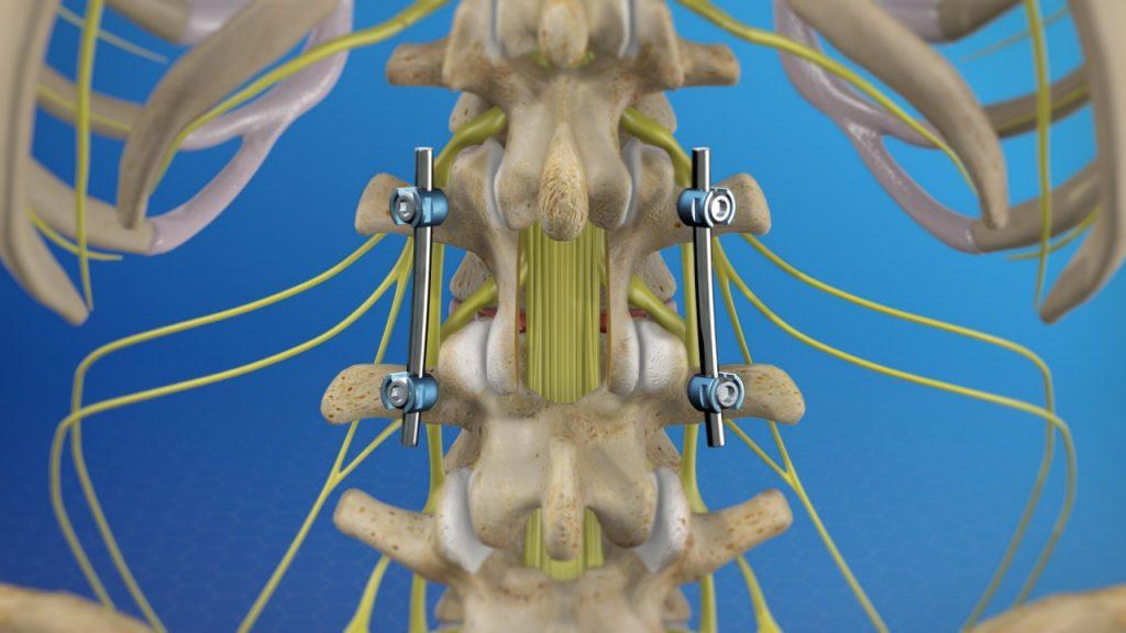فیوژن خلفی قفسه سینه با حداقل تهاجم