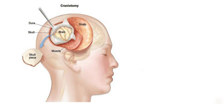 بروز چه مواردی بعد از عمل کرانیوتومی عادی است