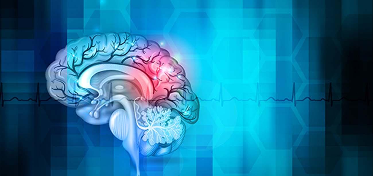 جراحی عروق مغز