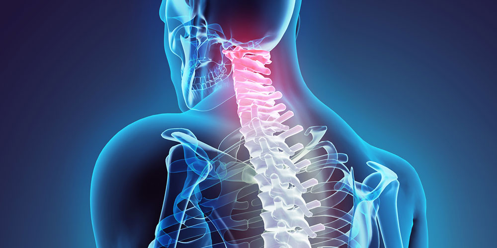 خطرات جراحی دیسک گردن