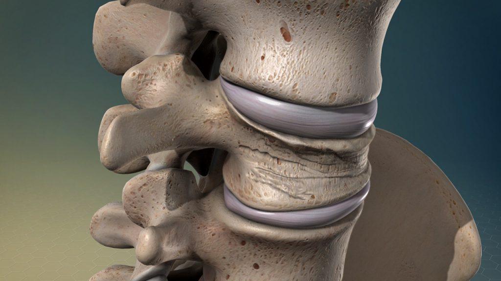 درمان شکستگی مهره های گردن