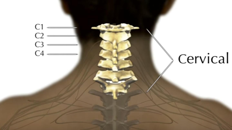 شکستگی مهره گردن