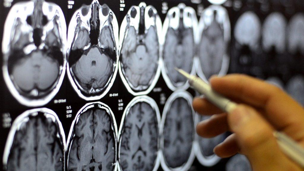 تفاوت بین تومور مغزی اولیه و تومور مغزی متاستاتیک