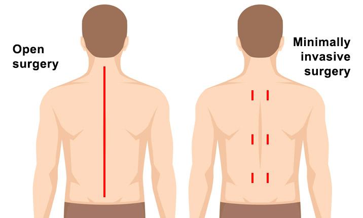 جراحی ستون فقرات با حداقل تهاجم