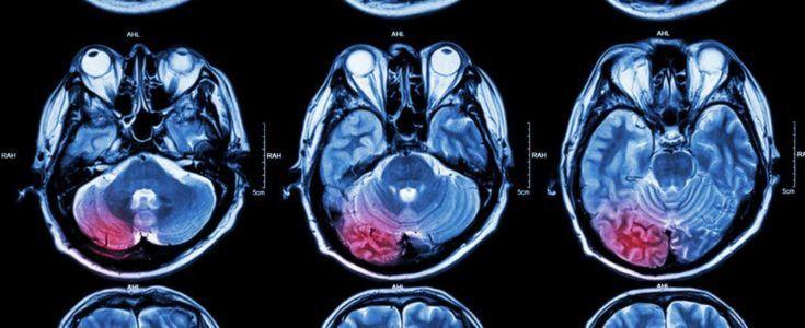 تومور مغزی اولیه و تومور مغزی متاستاتیک