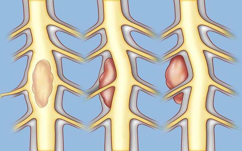 درمان تومورهای ستون فقرات