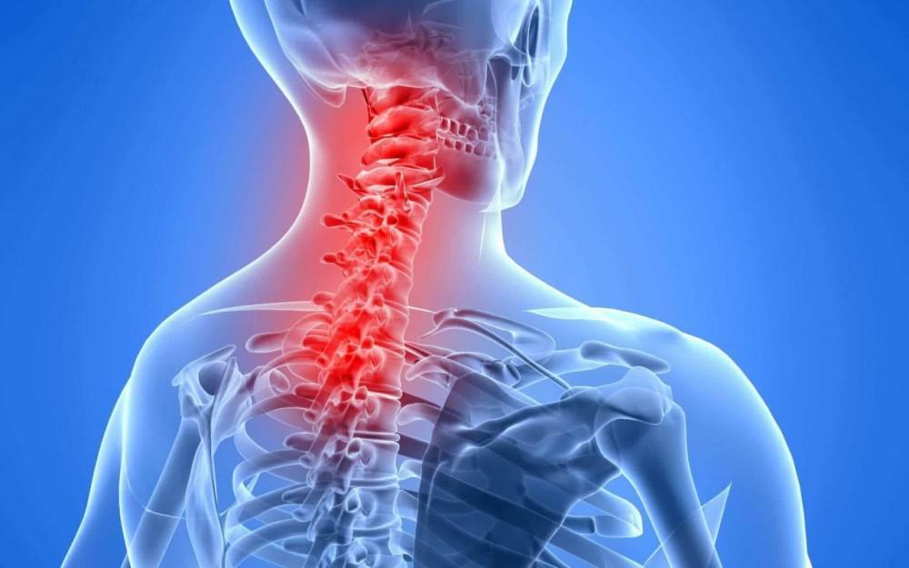 درمان قطعی دیسک گردن