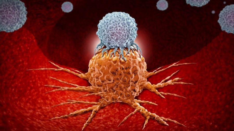 انواع تومور نخاعی
