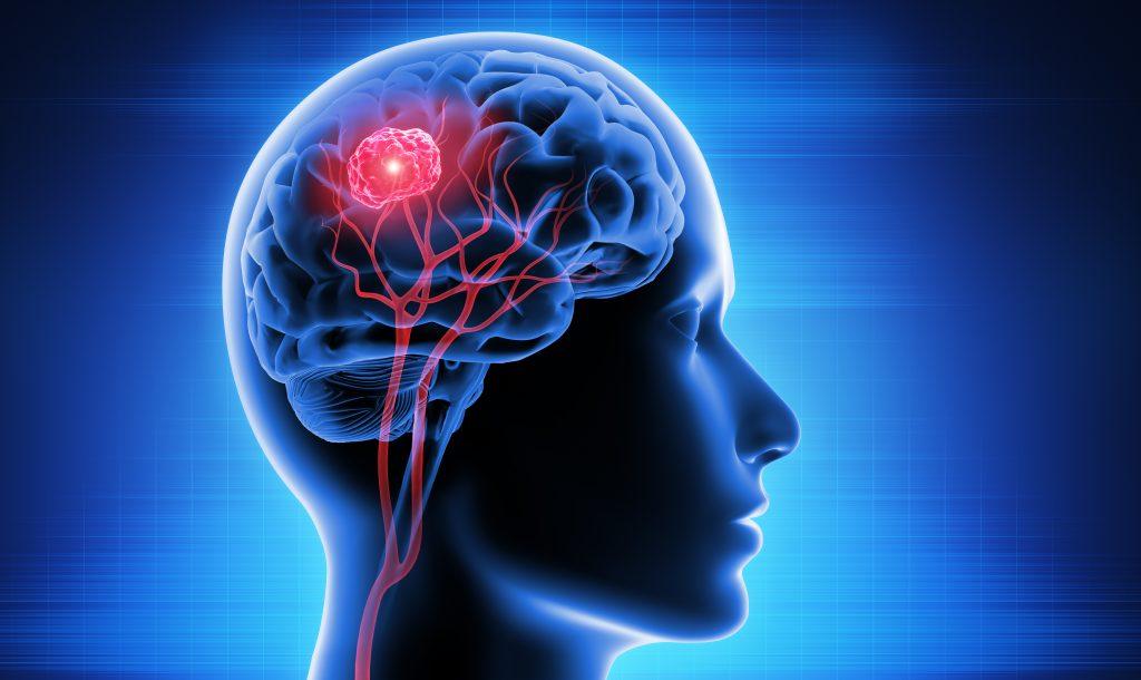 علائم تومور مننژیوم