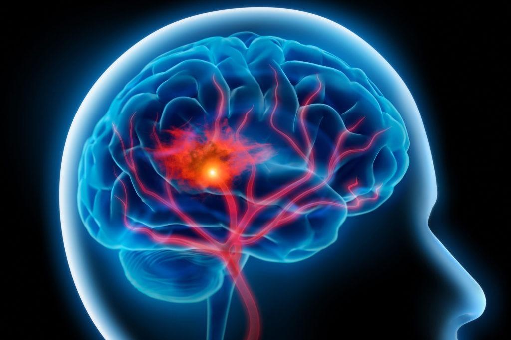 درمان بعد از عوارض سکته مغزی