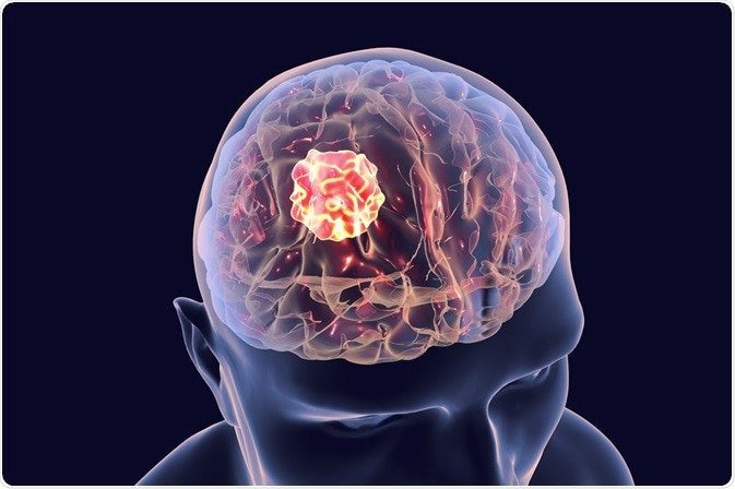 علائم تومور مغزی