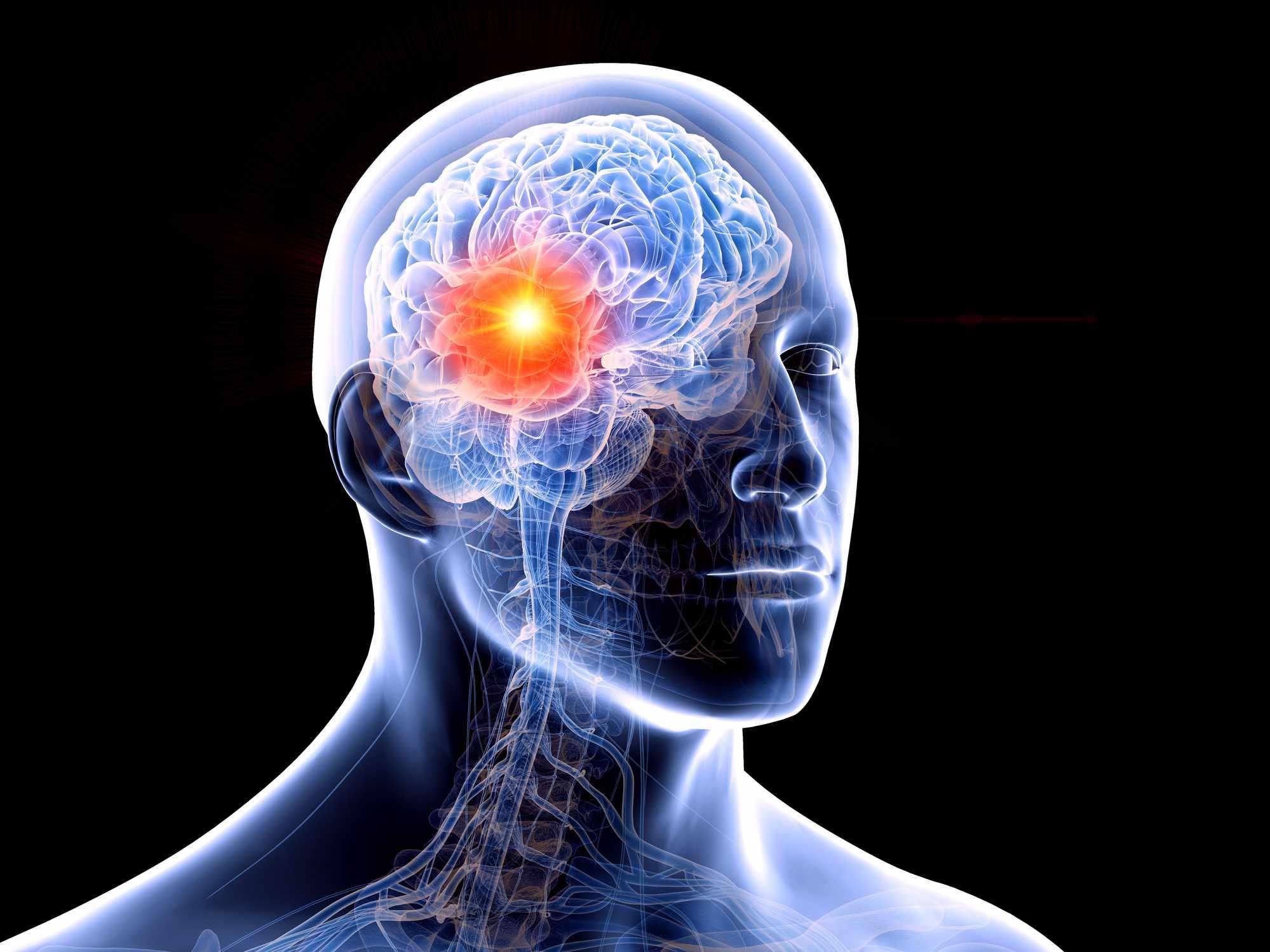 تومور مغزی و افسردگی