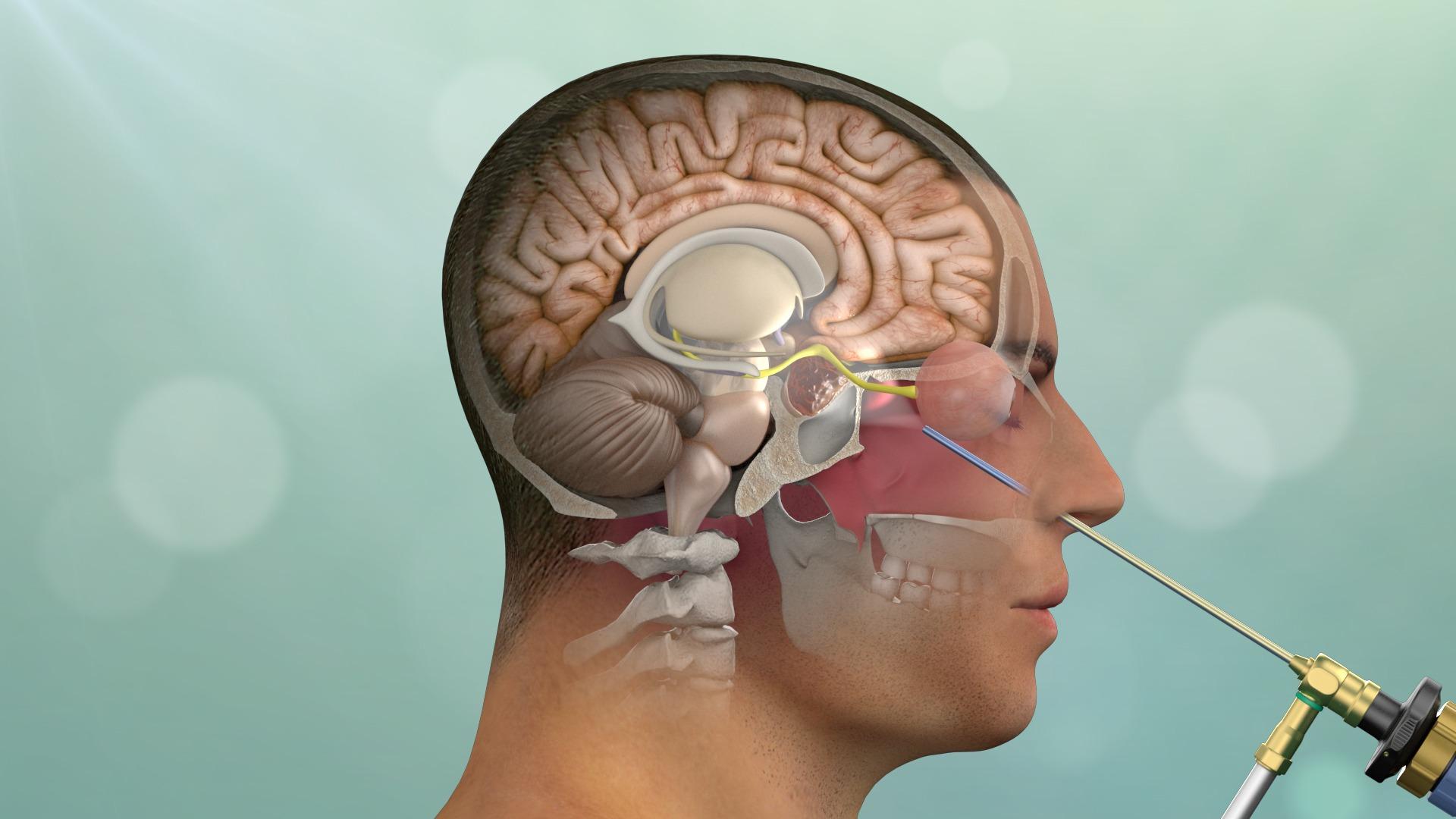 جراحی آندوسکوپی تومور هیپوفیز